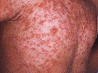 Measles- Morbilliform Rash