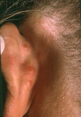 Angiolympoid Hyperplasia with Eosinophilia
