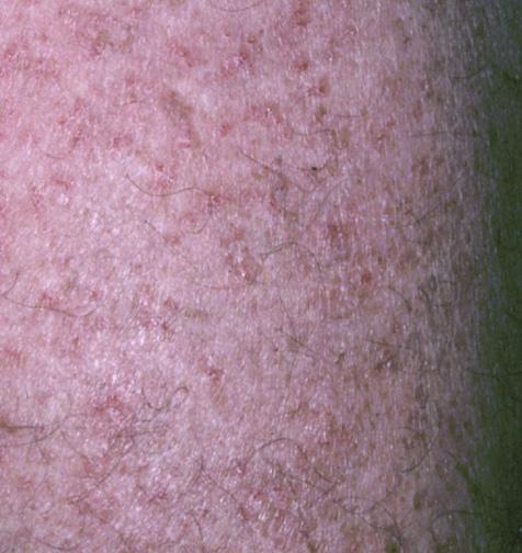 Flegel's Disease