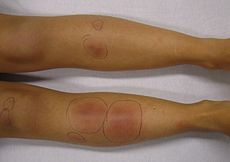 Panniculitis