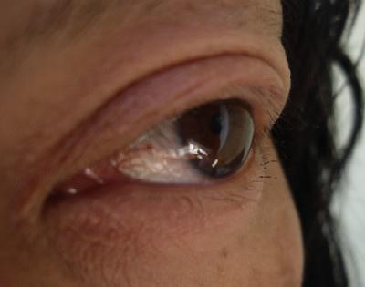 Fusariosis- Keratitis