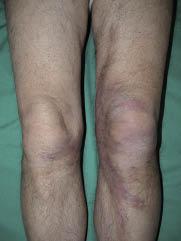 Morpheaform Sarcoidosis