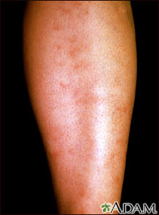 Hepatitis B Virus - Polyarteritis Nodosa