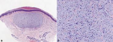 Hereditary Progressive Mucinous Histiocytosis in Women