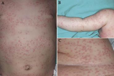 Generalized Eruptive Histiocytosis