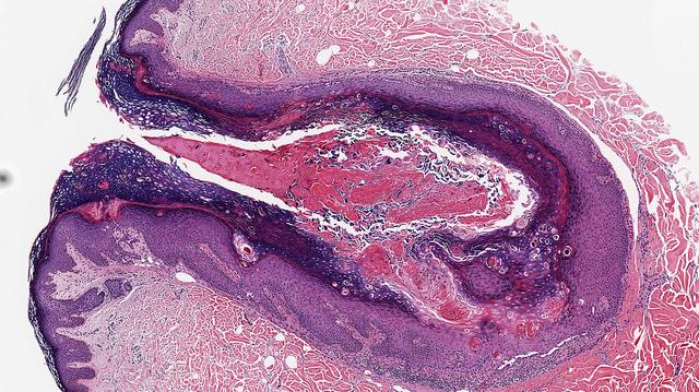 Warty Dyskeratoma Histology