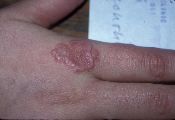 Localized Granuloma Annulare