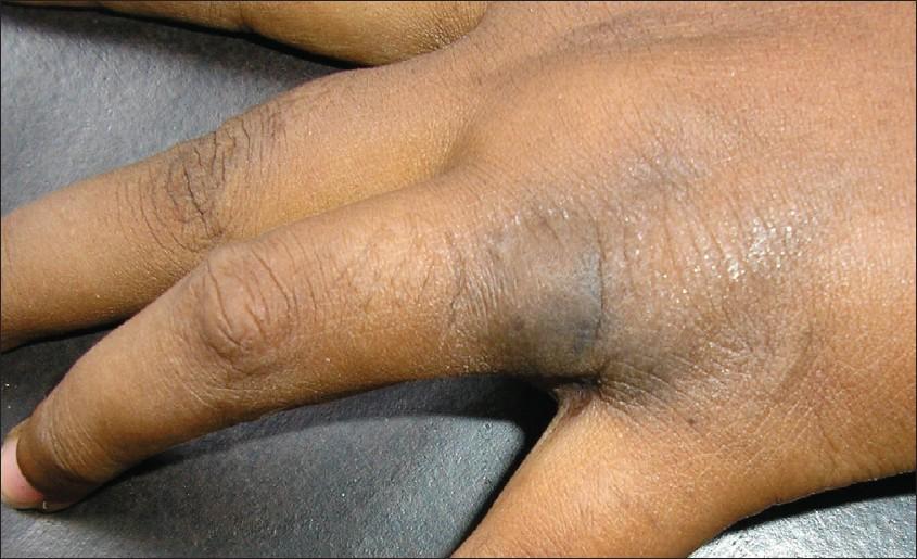 Eccrine Angiomatous Hamartoma