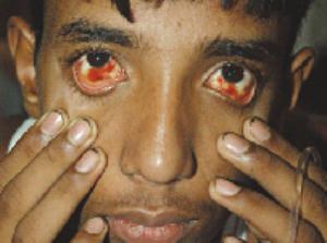 Dengue Hemorrhagic Fever- Bleeding in the Conjunctiva