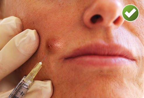 Acne Cyst Injection