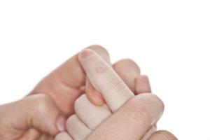 treating-skin-warts