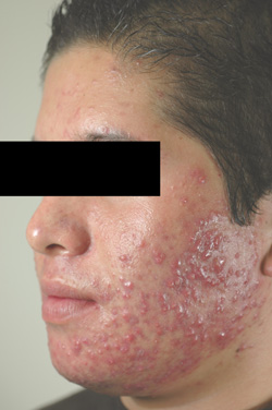 Photodynamic Therapy of Acne