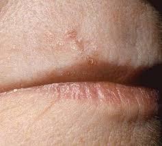Morpheaform Basal Cell Cancer