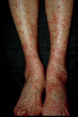 Hepatitis C- Cryoglobulinemia
