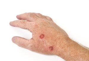 skin cancer screening spring