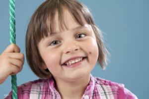 Little Girl With Mole on Face