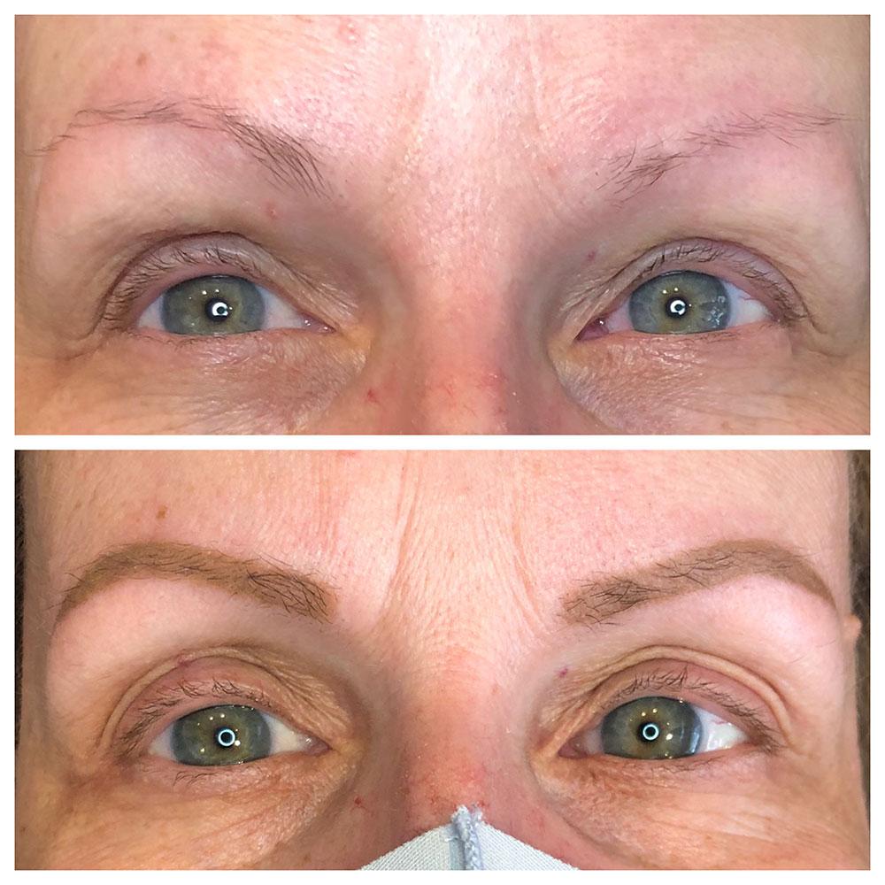 Before & After Photos – Permanent Makeup