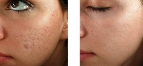 Microfractional Austin Before After