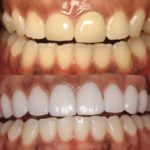 Whitening and dental care