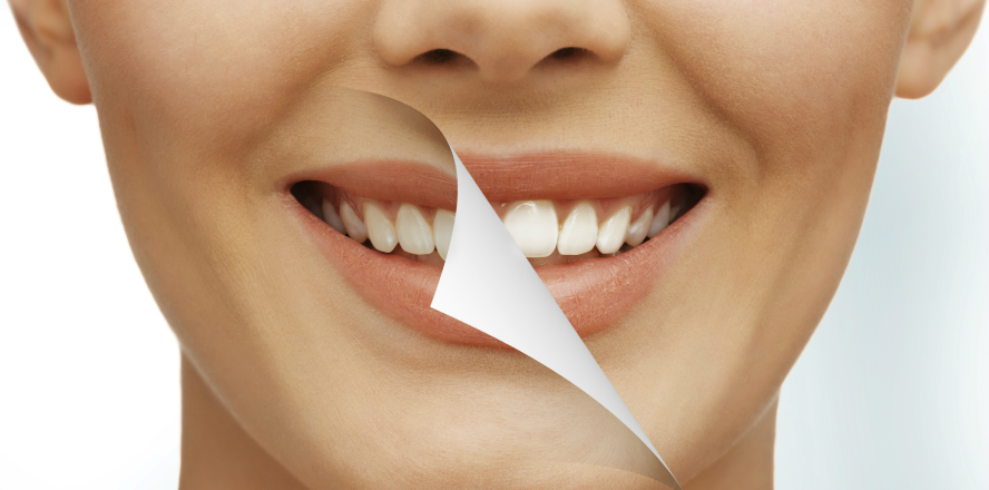 teeth-whitening-in-mission-bc