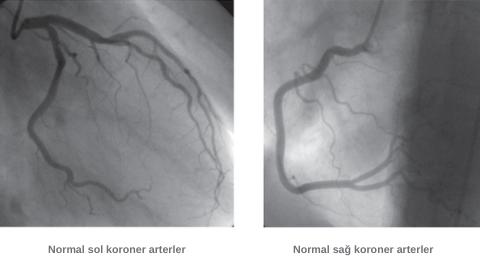 Normal koroner arterler