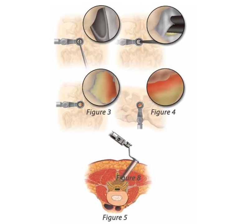 Medtronic Metrx system