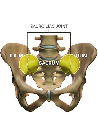 sacroiliac joint330x450