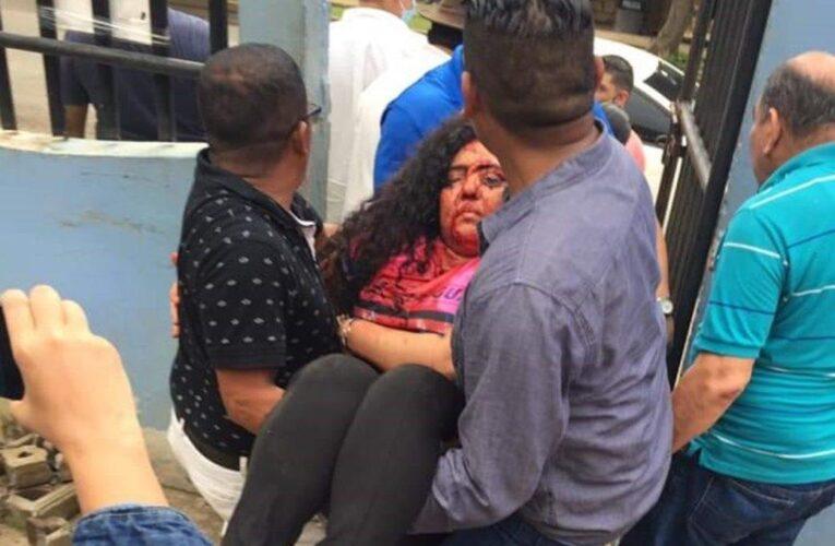 Atacan a opositores y periodistas en Nicaragua