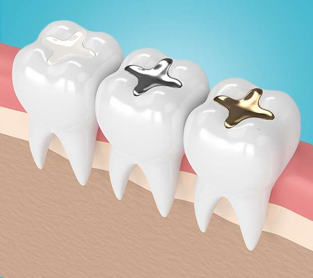 Independence Composite Fillings