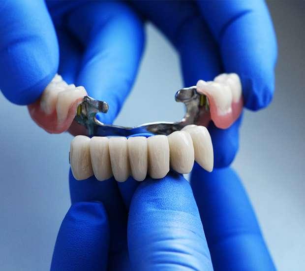 Independence Dental Bridges