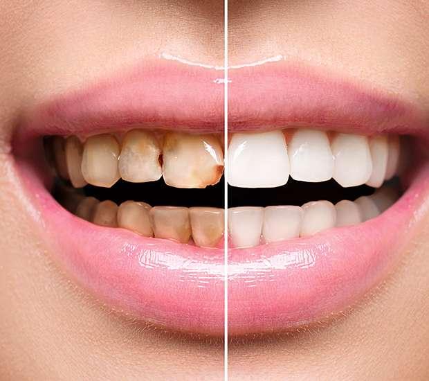 Independence Dental Implant Restoration