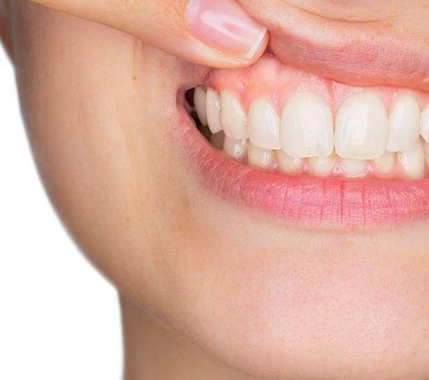 Independence Gum Disease