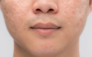Acne-Scarring-and-Stretch-Marks