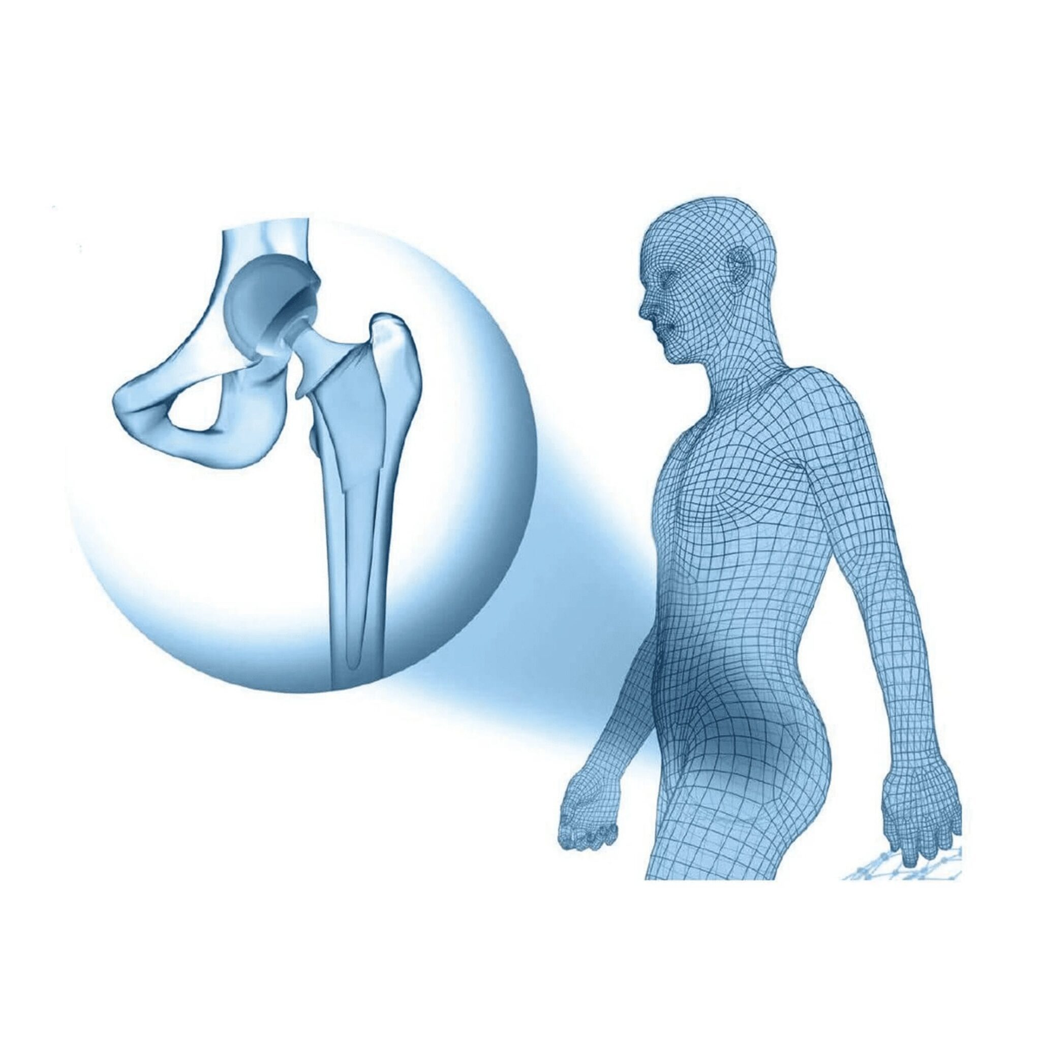 Recovery Diary ~ Total Hip Replacement Anterior Approach Days 0 – 1