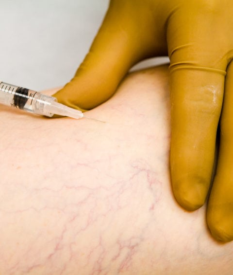 sclerotherapy patient