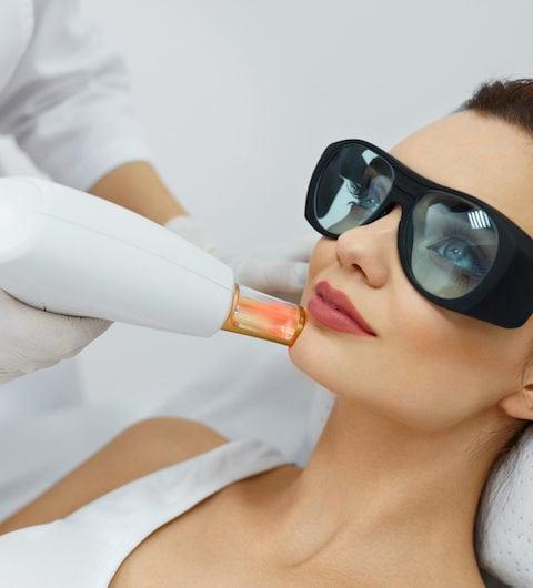 skin resurfacing patient