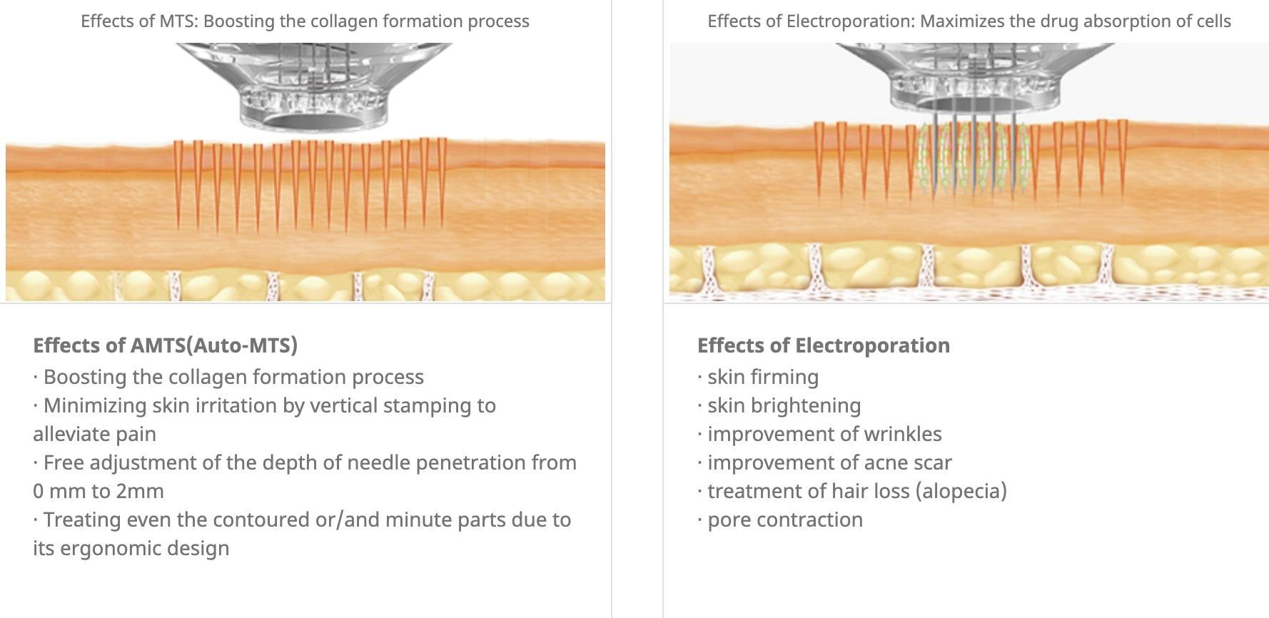 epn microneedling diagram