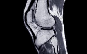 Knee 2