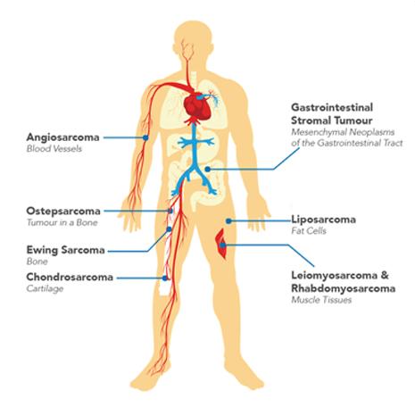 Sarcoma Types graphic