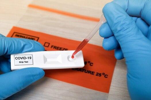 समस्तीपुर सदर अस्पताल में RT-PCR जांच लैब शुरू, 24 घंटें में मिलेगी रिपोर्ट समस्तीपुर Town