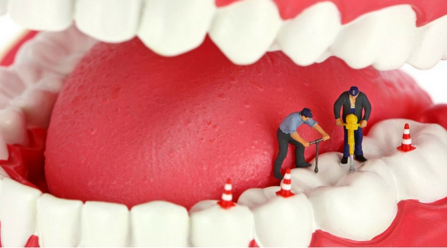 THE HIDDEN FACTS AND SERIOUS HEALTH PROBLEMS FROM ROOT CANALS AND CAVITATIONS