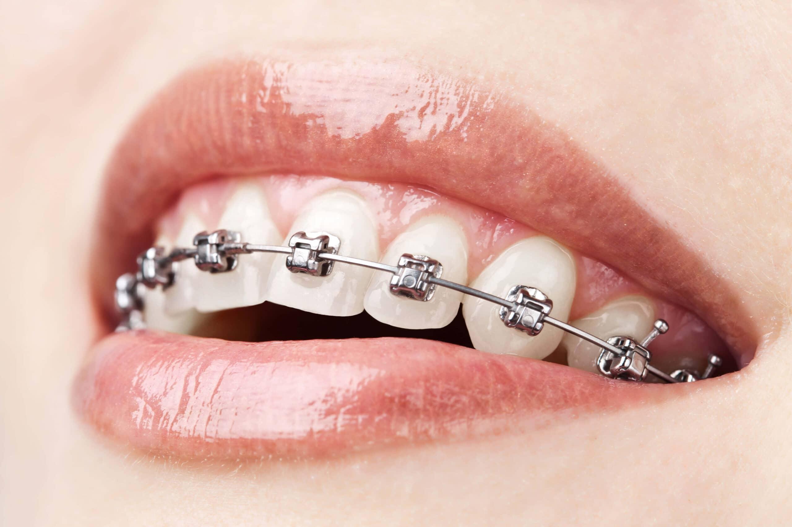 How to take care of my braces with Coronavirus disease.