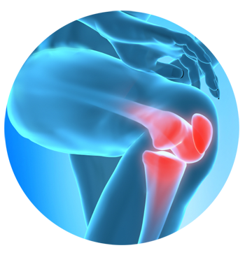 Supartz joint therapy is an alternative to knee surgery or pain medication