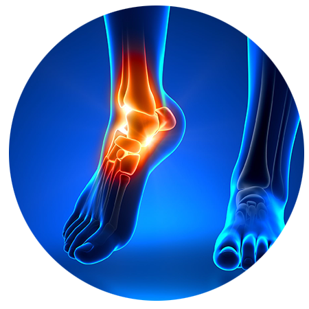 Foot Orthotics can ease foot pain and imbalances | Valley Physical Medicine