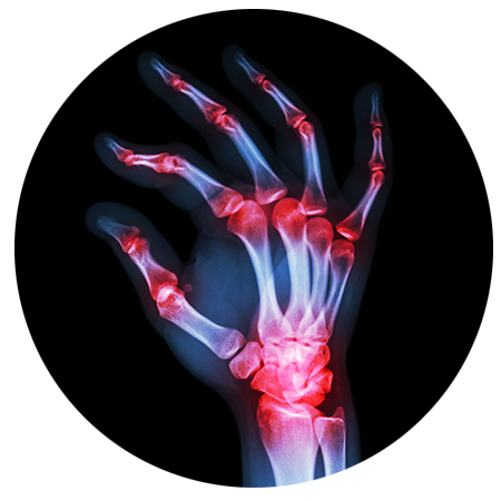 Find relief from carpal tunnel syndrome at Fayetteville's Valley Physical Medicine.