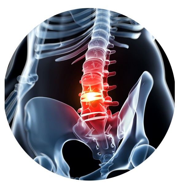 Spinal stenosis treatments for patients in and around Fayetteville, NC
