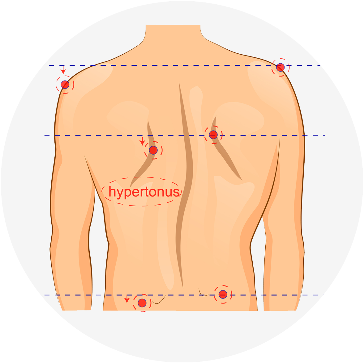 An image showing a human back and highlighting the different symptoms of scoliosis