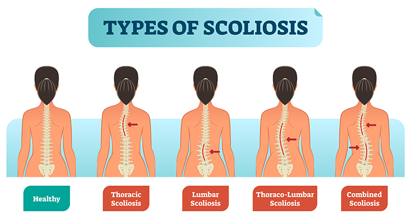 An image comparing a healthy spine to spines with different types of scoliosis.