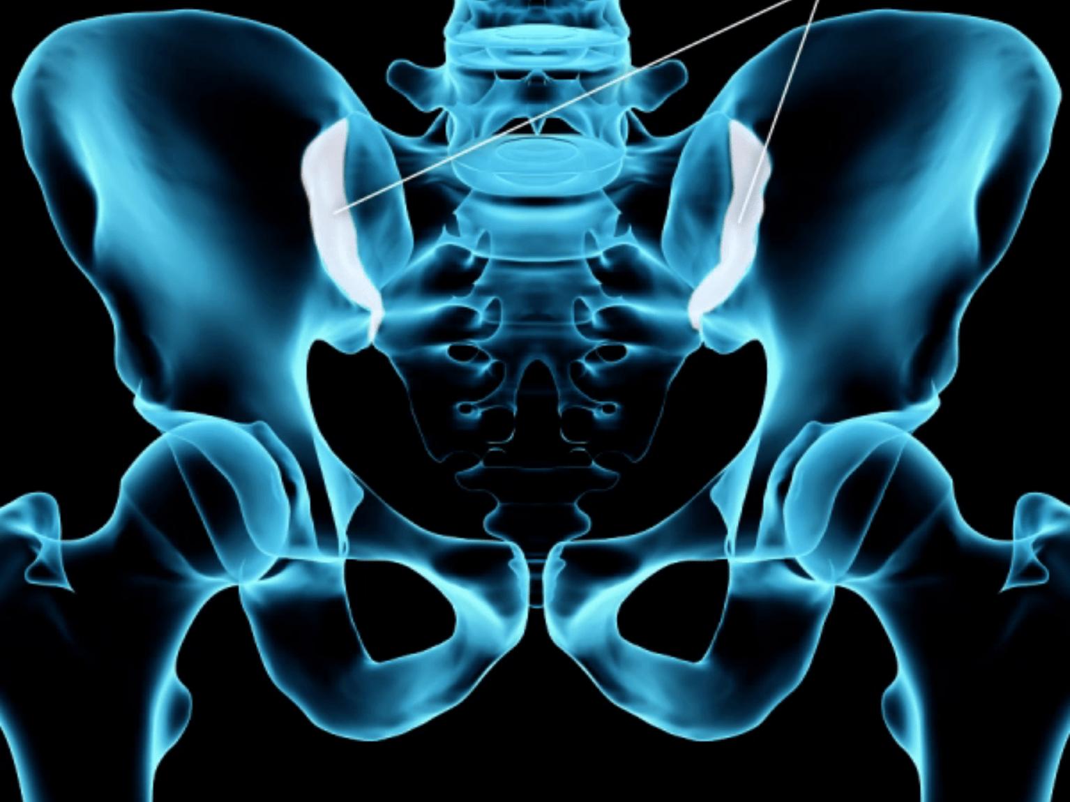 Sacroiliac joint arthritis.