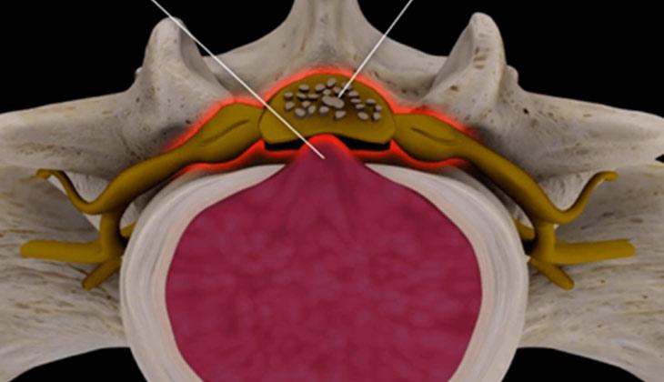 cauda-equina-syndrome